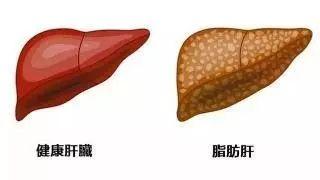 脂肪肝,别陷入六个误区