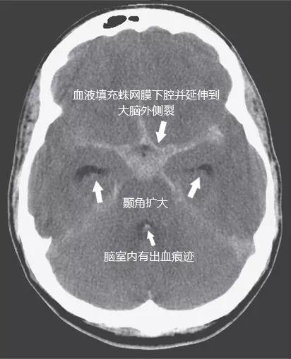 NEJM综述:蛛网膜下腔出血的评估与治疗